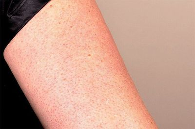Ever wonder what those annoying little red bumps are on your upper arms? They are called Keratosis Pilaris (or KP) and here are 10 simple, natural ways to get r