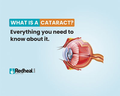 Cataract is one of the most common reasons for vision loss, especially in people aged above 40. Check our latest article to know everything about it.