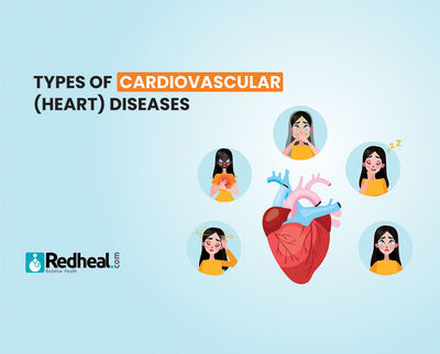Know about the types of Cardiovascular (heart) Diseases. An article to know more about types of cardiovascular diseases. https://www.redheal.com/blog/cardiology/types-of-cardiovascular-heart-diseases/