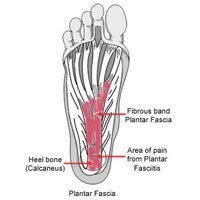 Plantar Fasciitis Piriformis   Runner's World & Running Times...don't skip the video. It's gives very clear instructions on how to treat and prevent this condition.