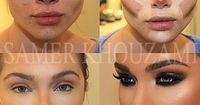 how to aply concealer for a round face - Google Search