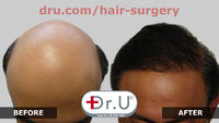 BEST NW 7 Hair Restoration in Los Angeles with Dr. Umar using Dr.UGraft