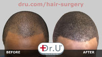 Young African American Patient Gets Bad Hair Tattoo Repair by Dr. UGraft
