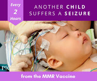 Risk of Seizure Resulting from the First Dose of the Measles, Mumps and Rubella (MMR) Vaccine2