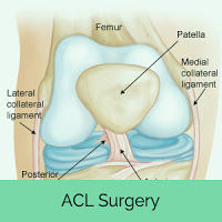 ACL cost effective treatment in India