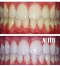 Put a tiny bit of toothpaste into a small cup, mix in one teaspoon baking soda plus one teaspoon of hydrogen peroxide, and half a teaspoon water. Thoroughly mix then brush your teeth for two minutes. Remember to do it once a week until you have reached th...