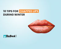 Chapped lips are one of the most irritating effects of the winter season. Check our blog article to know about some effective tips to soothe your dry lips.